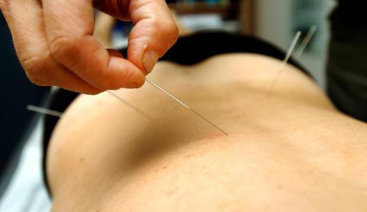 acupuncture mal de dos