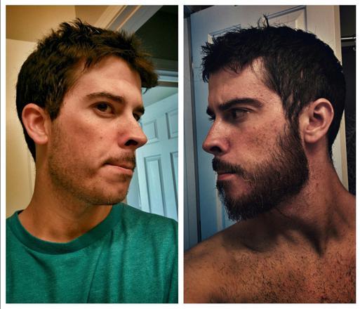 barbe avant apres
