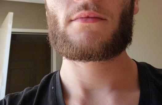 barbe ne pousse pas