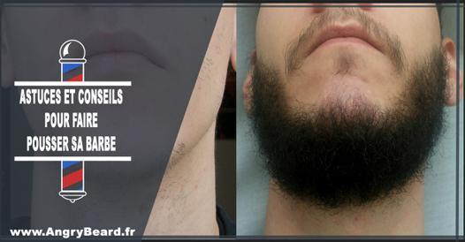 barbe qui ne pousse pas