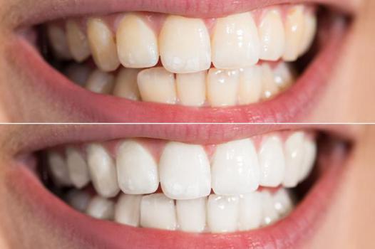 blanchir les dents maison