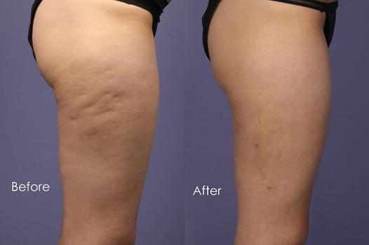 course à pied cellulite
