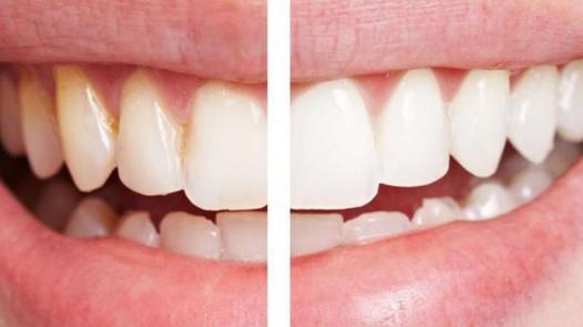 dent bicarbonate de soude