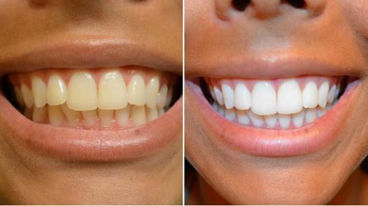 dentifrice blancheur avis