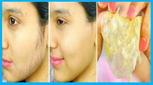 enlever poils visage
