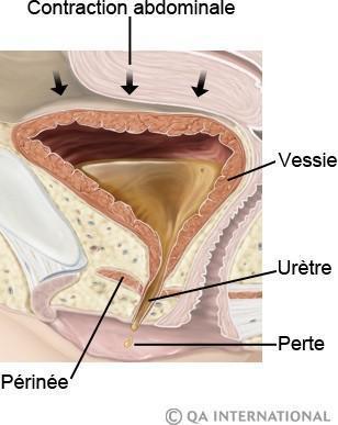 fuite urinaire post accouchement