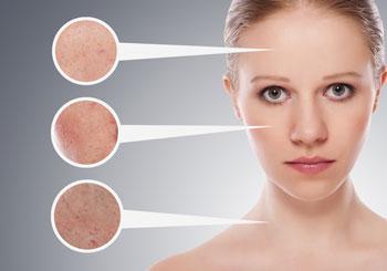 peau rosacée couperose