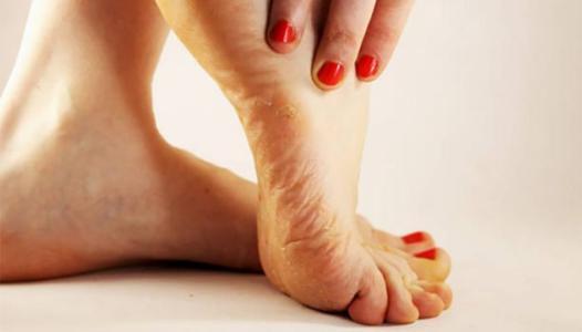 pied chaud et douloureux