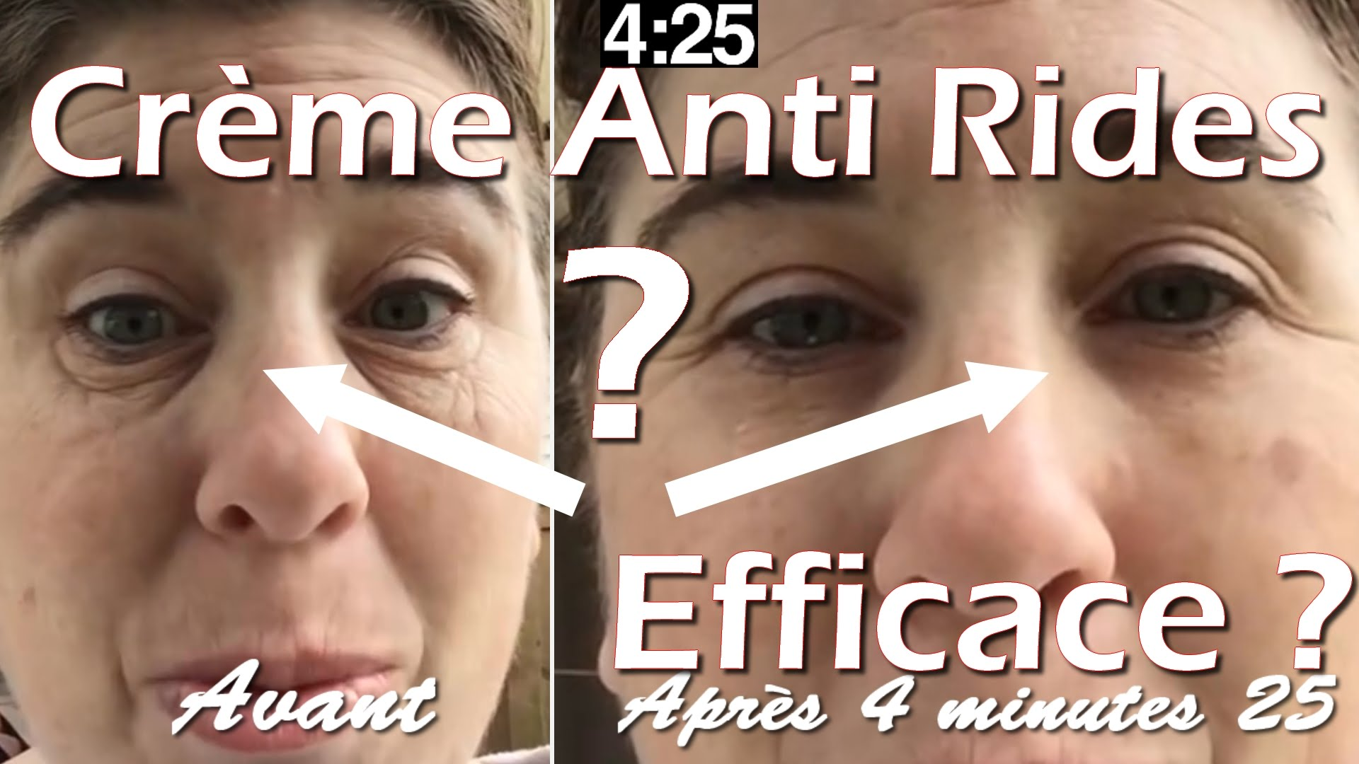anti ride efficace et