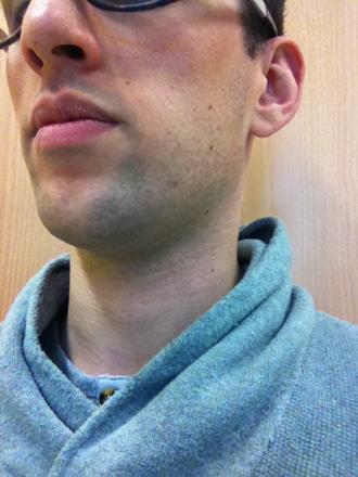 barbe dur