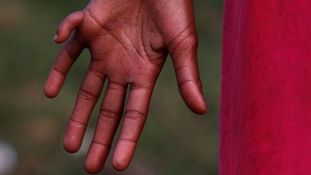 main à 6 doigts